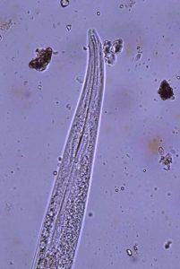 sm-171119-big-nema-400x-worm-bin-tc_7